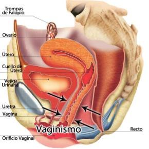 El vaginismo